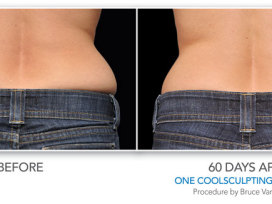 CoolSculpting-Before-After_Female3