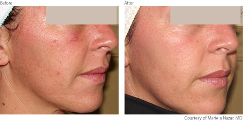 Before Photorejuvenation