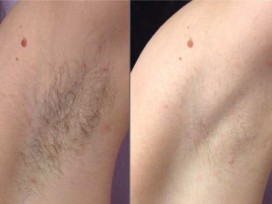 laser-hair-removal-before-after-virginia-chesapeake-vein-medspa-full-3 (2)